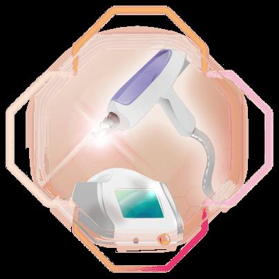 ND:YAG-Laser Illustration