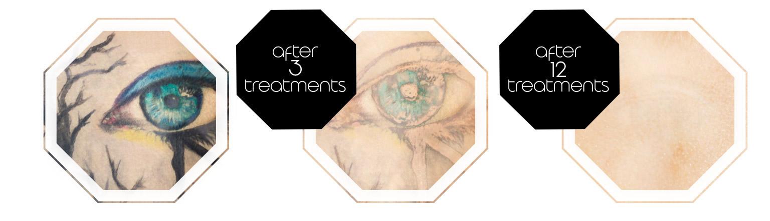 Treatment sucess tattoremoval foto progression