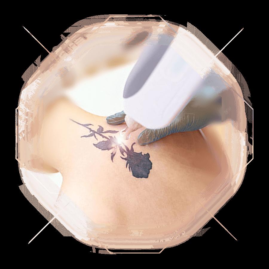 Fotokollage Tattooentfernung